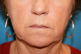 Co2 Laser Skin Resurfacing before 511925