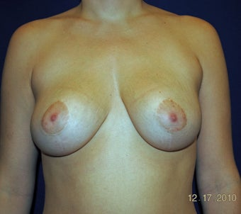 Breast Reduction Surgery after 402928