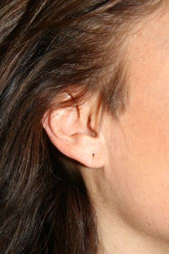 Ear Lobe Repair before 584367