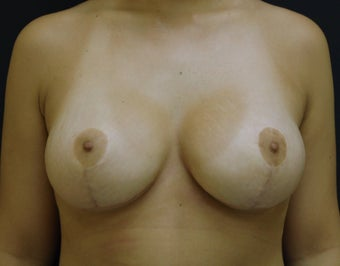 Breast Augmentation with a full lift after 306736