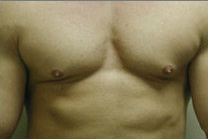 Male Breast Reduction before 141526