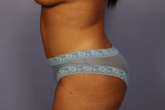 Tummy Tuck after 325631
