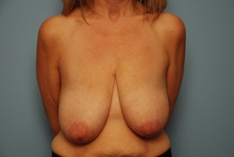 Bilateral Breast Lift before 259124