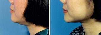 Chin Liposuction before 640730