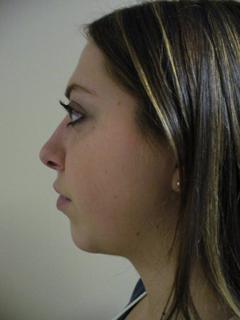 Chin Implant, Neck Lift, Neck Liposuction after 578293