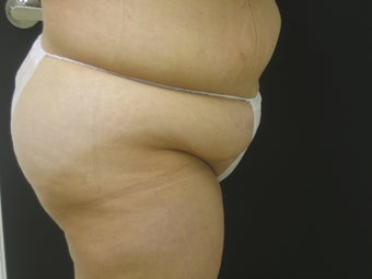 Tummy Tuck After Gastric Bypass 523251