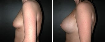 Breast Augmentation  before 110027