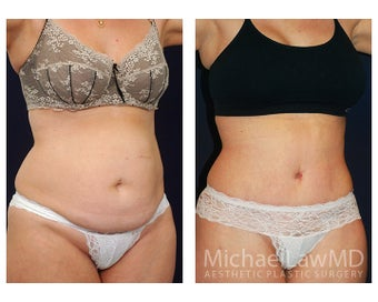 Abdominoplasty - Tummy Tuck after 396091