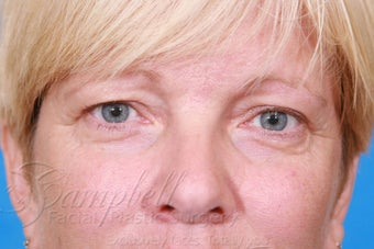 Blepharoplasty / Eyelid Surgery before 289211