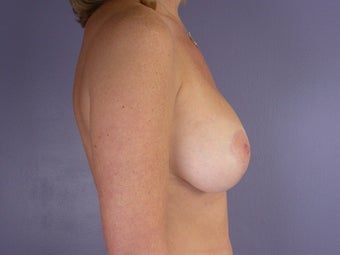 Breast Lift / Breast Augmentation after 291131
