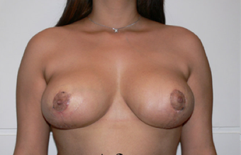 Breast Reduction after 427690