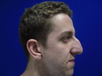 Rhinoplasty before 214625