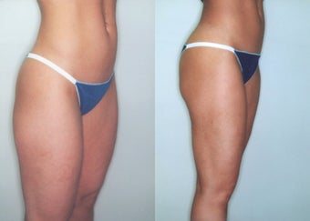 Liposuction (Thighs, Knees & Buttocks) before 350938