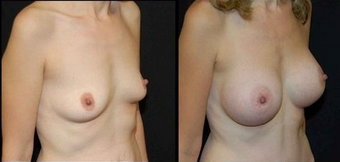 Breast Implants after 150816