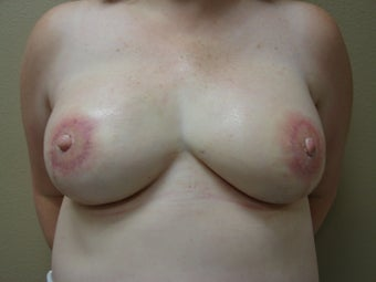 Nipple / Areola Reconstruction after 385072