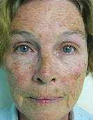 Skin Resurfacing Using Plasma Rejuvenation with Portrait before 196054