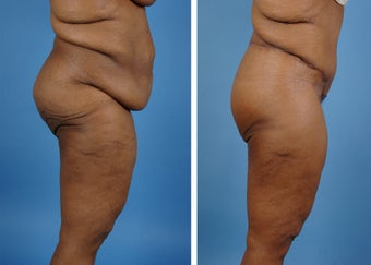Lower Body Lift with Laser Liposuction to the Hips and Thighs 335995