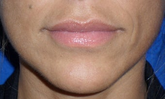 Lip Augmentation after 167640