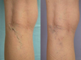 Laser Vein before 302231
