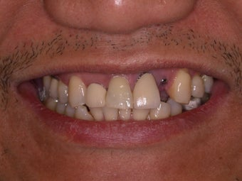 Dental Implants 384528