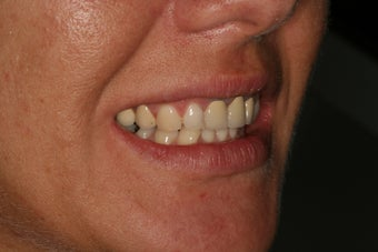 Dental crowns, dental implants, dental veneers 569204
