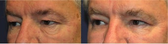 Eyelid lift before 553645