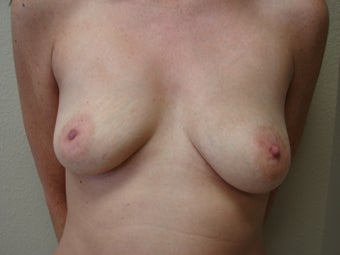 Saline Breast Augmentation Moderate Plus Profile 325 cc before 339386