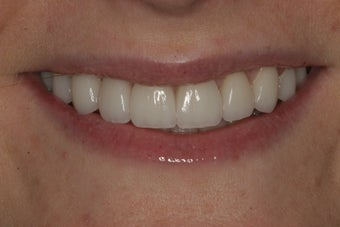 Porcelain Veneers after 213081