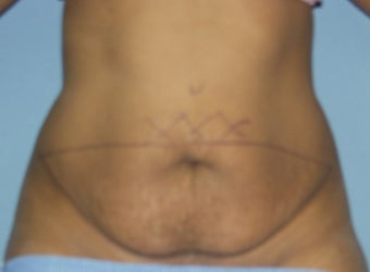 Tummy Tuck before 551321