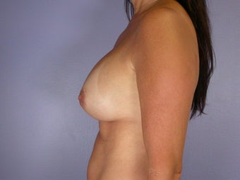 Breast Revision Surgery  after 307257