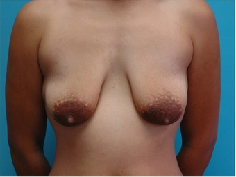 Breast augmenation and lift