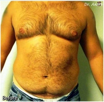Male Liposuction of Abdomen and flanks before 277008