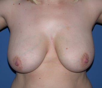 Breast reduction before 248354