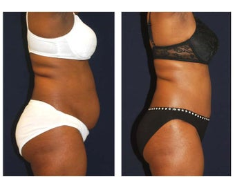 Tummy Tuck / Abdominoplasty before 55004