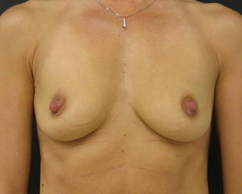 Silicone Gel Breast Augmentation before 145463