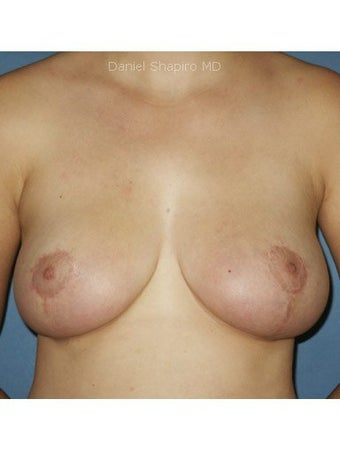 Bilateral Mastopexy after 249983
