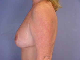 Breast Reduction after 321450