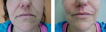 Juvederm before 561089