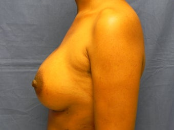 Breast Augmentation  364626
