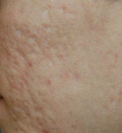 Acne Scar Vitalizer Treatment before 562078