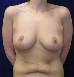 Breast Lift -without implants after 540739
