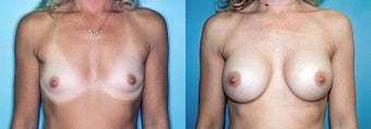 Breast Augmentation (34A to 34C) before 352791