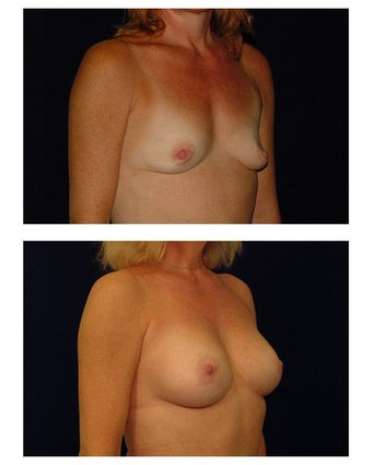 Breast Augmentation before 149511