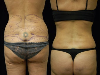 Smartlipo Triplex liposuction of the waist and flanks. Cellullaze of the buttocks and thighs before 602414