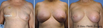 Breast reconstruction before 270825