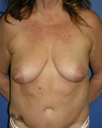 Bilateral breast augmentation with mastopexies before 404094