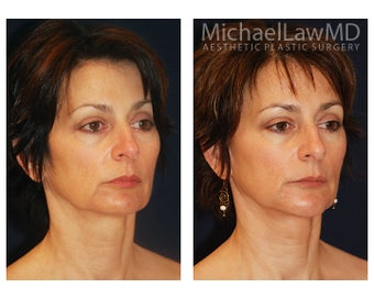 Chin Liposuction after 391524