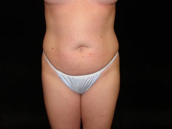 Standard Abdominoplasty  before 203438