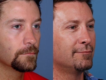 Revision rhinoplasty 355697