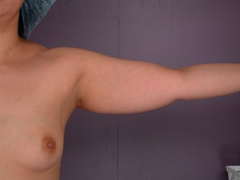 Liposuction of the arms before 306399